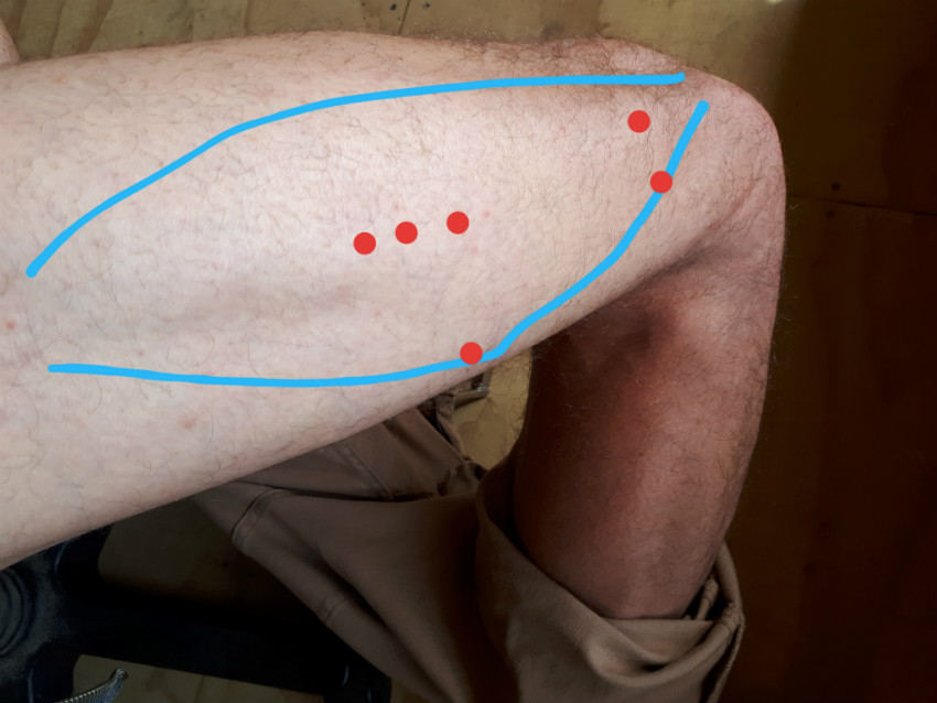showing where the trigger points for outer knee pain are located